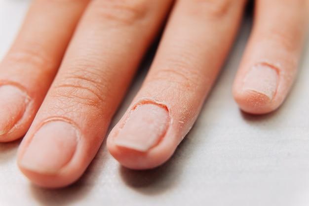マニキュアプロセス。爪のキューティクル。