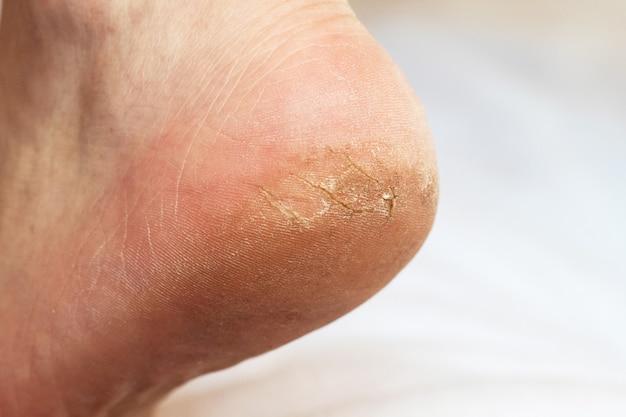 Нога мужчины с трещинами на пятке