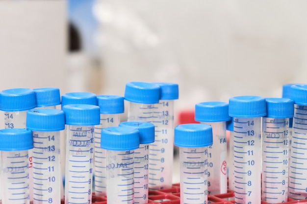 В стойке много пробирок с фальконом с синими крышками. подготовка проб в химической или клинической лаборатории.