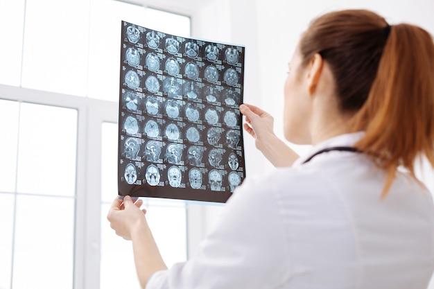 多くの可能性。彼の診断に取り組んでいる間、患者の脳スキャンを保持し、検査することに焦点を当てた関心のある訓練された脳神経外科医