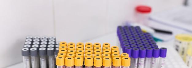테스트 중인 혈액과 많은 테스트 튜브. 코로나바이러스와 Covid-19 개념. 프리미엄 사진