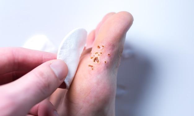 레이저로 사마귀를 제거한 흔적. 발에 전염되는 피부병. 면 패드를 발가락에 들고 있는 남자. 진료 사진입니다.