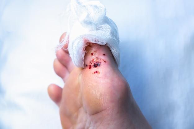 레이저로 사마귀를 제거한 흔적. 출혈 부상. 발가락에 붕대. 발에 전염되는 피부병. 진료 사진입니다.