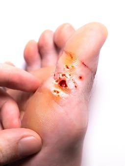 레이저로 사마귀를 제거한 흔적. 출혈 부상. 발에 전염되는 피부병. 진료 사진입니다.