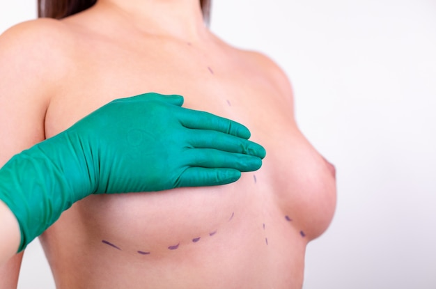 Measurement of breast size for the selection of the implant