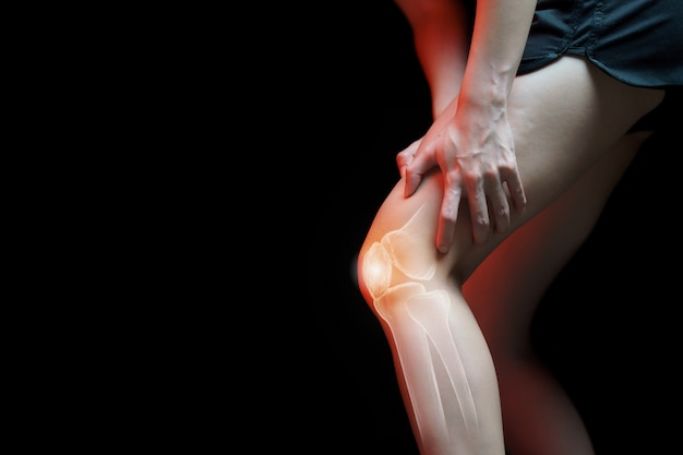 Medical concept, woman suffering  with knee painful - skeleton x-ray,