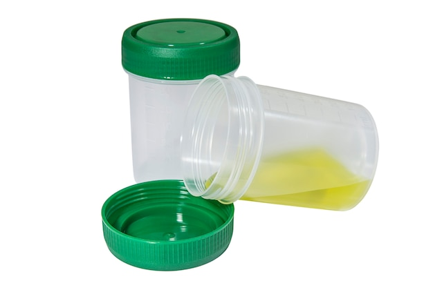 Медицинские контейнеры для биологических жидкостей