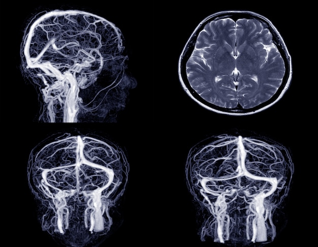 Medical image mrv (magnetic resonance venography) brain of veins in human head.