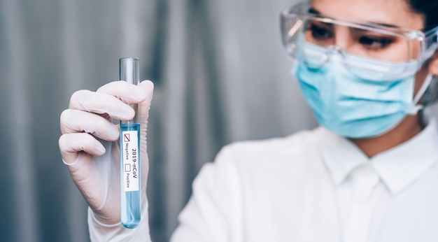 Medical laboratory technologist holding test tube with sampling contaminated with 2019-ncov or coronavirus lab test in covid-19 situation outbreaking, epidemic virus respiratory syndrome