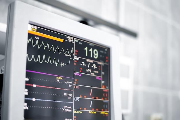 Машина медицинского монитора в операционной показывает нормальные жизненные признаки пациента.