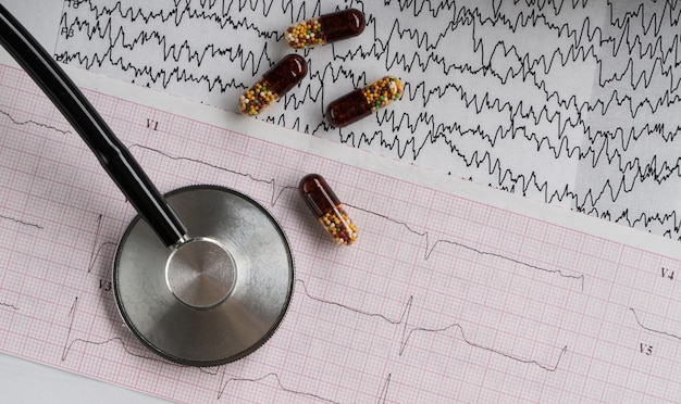 明るい背景に錠剤と心電図を備えた医療聴診器。上面図