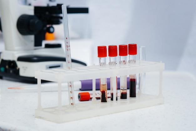Медицинские пробирки с макро анализов крови в лаборатории.