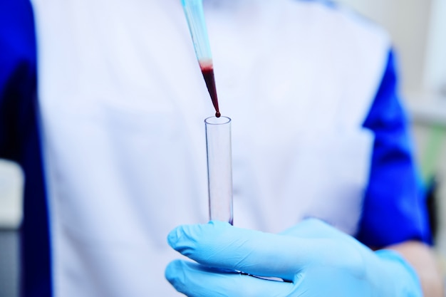 Medical test tubes with blood tests