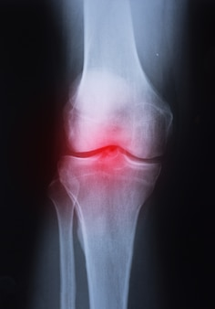 Medical x-ray knee joint image with arthritis ( gout , rheumatoid arthritis , septic arthr