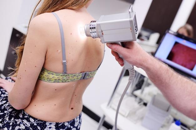 黒色腫の診断。母斑とほくろの検査。医師は患者のほくろを検査します。
