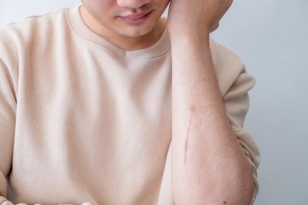 남자는 사고로 인한 팔의 통증을 느낍니다.