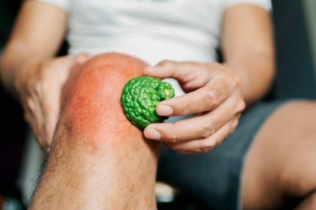 Men with knee pain use bergamot herbs to relieve.