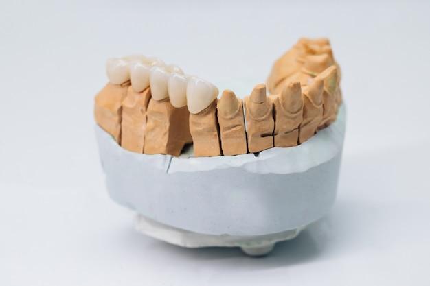 石膏モデルの金属を含まないセラミック歯冠
