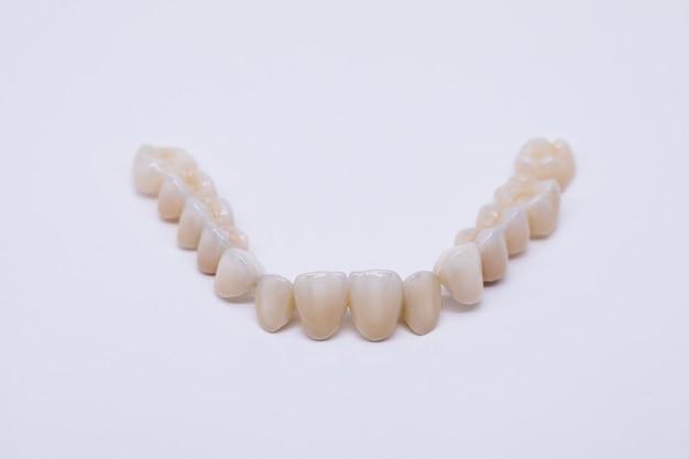 金属を含まないセラミック製歯冠。