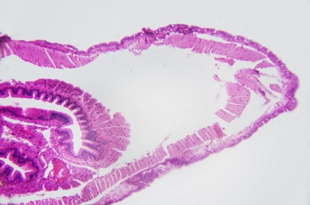 Microscopic photography. earthworm, transversal section.