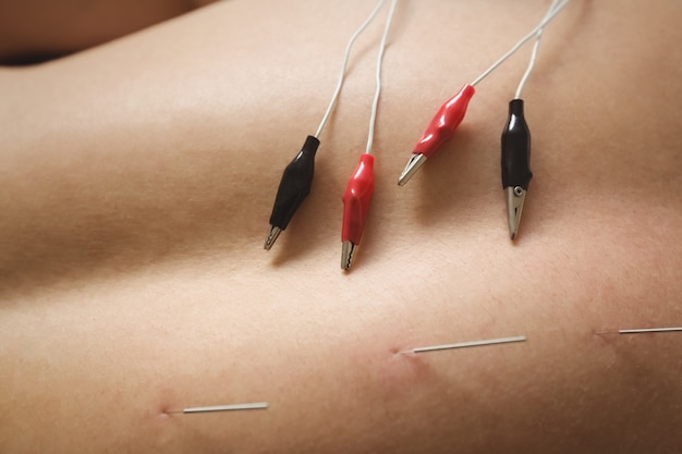 Mid section of a patient getting electro dry needling on his back