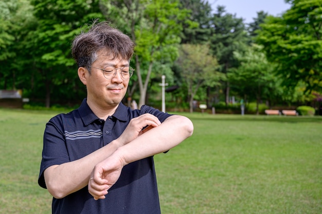 Middle-aged asian man scratching his arm because of sun allergy to sunlight.