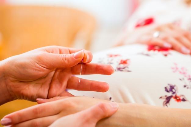 Акушерка дает иглоукалывание во время беременности