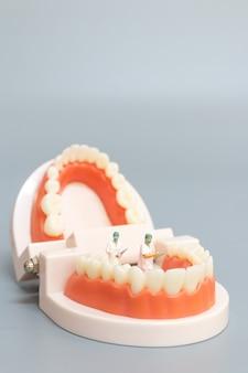 Миниатюрные люди: стоматолог восстанавливает человеческие зубы с помощью десен и эмали, здоровье и медицинская концепция
