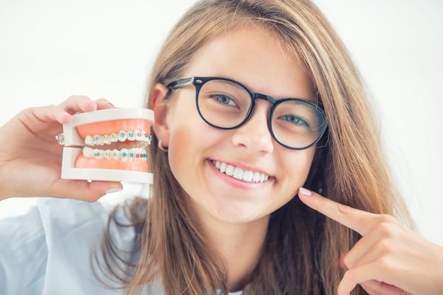 Модель брекетов в руке молодой девушки с выровненными зубами после процесса использования брекетов.