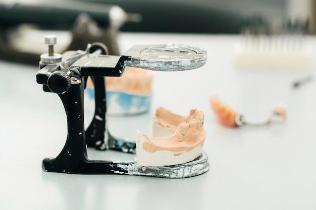 치과 기술자를위한 턱 석고로 만든 치아 모델.