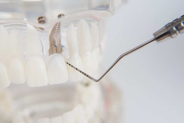 A model of teeth with implants lies on a table