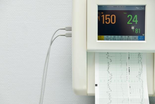 병원에 있는 임산부의 수축, 심장 박동 측정을 위한 모니터