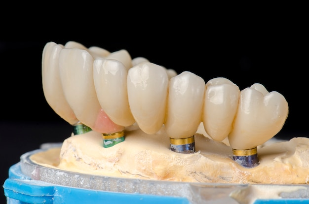 Monolithic zirconia restorations full arch implant