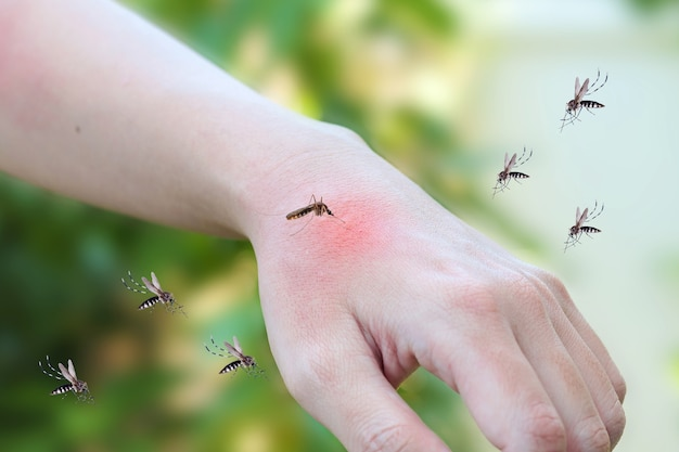 모기가 성인 손에 물린 피부 발진과 붉은 반점 알레르기