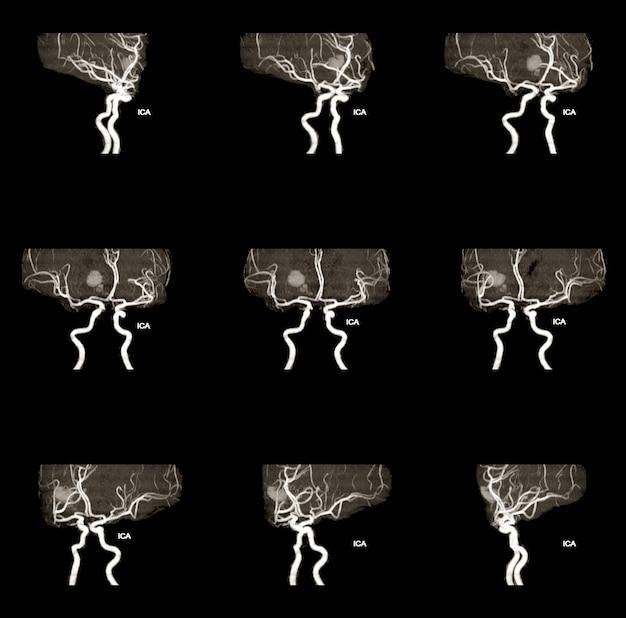 Mra и mrv мозга анамнез у 61-летней женщины возникло внутричерепное кровоизлияние.