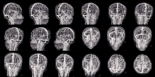 Mra 및 mrv of the brain은 작은 그룹의 눈에 띄는 동맥을 보여줍니다.