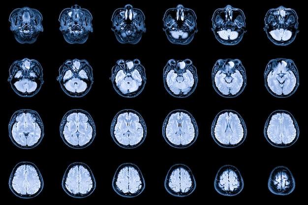左前篩骨洞と左前頭洞を占めるmri脳と眼窩