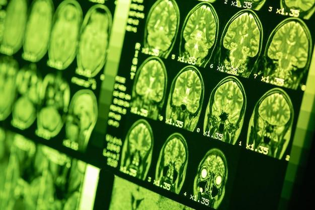 Mri of  brain of a healthy person with green illumination. magnetic resonance scan. medical healthcare concept