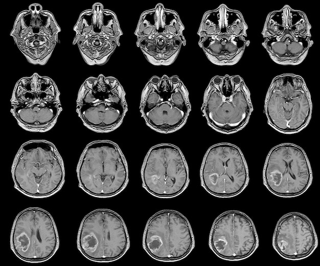 Mri brain mass is suggestive of second primary malignant brain tumor.