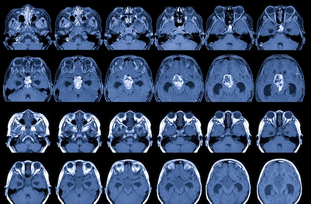 Mri brain with and without contrast media findings there is a 35cm diameter lobulated mass