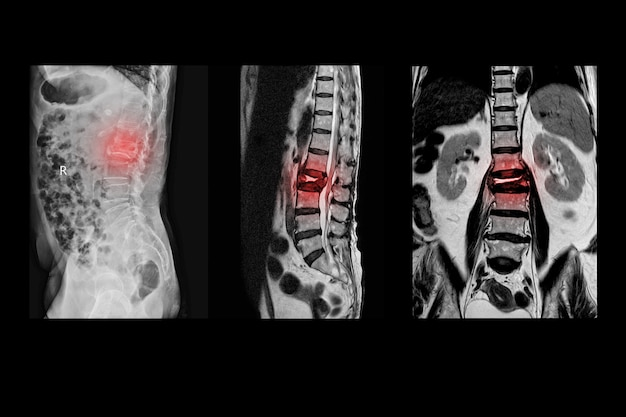 Mri of lumbar spine history of fall with back pain, radiate to leg, rule out spinal stenosis .