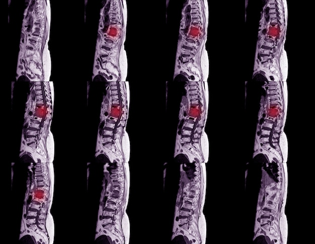 Mri of lumbar spine with contrast