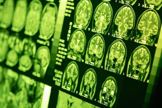 녹색 조명이 있는 건강한 사람의 뇌 mri. 자기 공명 스캔. 의료 의료 개념