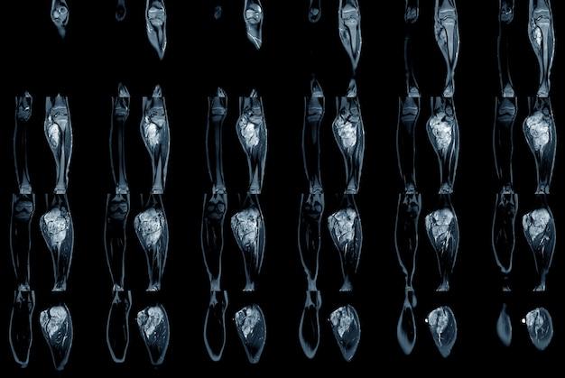 Мрт-сканирование нижней конечности обеих ног, показывающее опухоль или новообразование на голени икры
