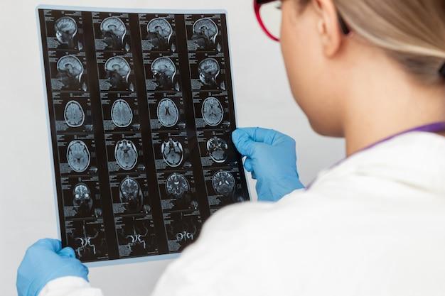 여의사 손에 컴퓨터 단층 촬영으로 뇌의 mri 스캔