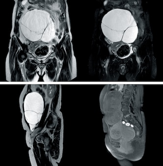 Mri of whole abdomen history: a 67-year-old woman, presented with huge complex cystic lesion in abdomen
