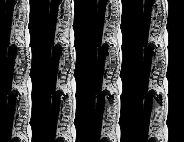 コントラストを有する腰椎のmri
