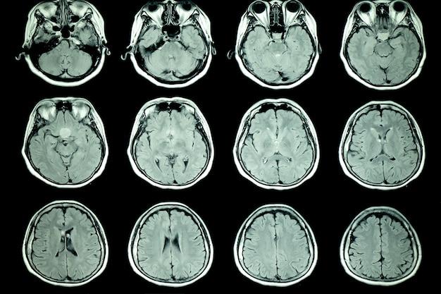 患者の脳のmriスキャン
