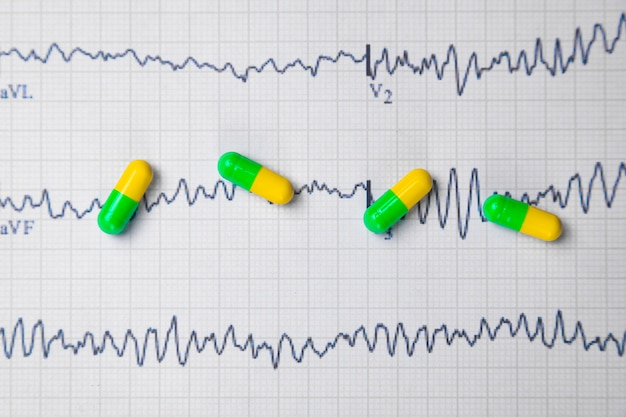 Multi-colored tablets on a sheet of electrocardiogram