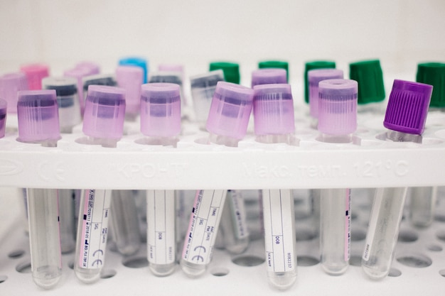 Multi-colored tubes for blood, medical items, biomaterial collection, doctor's office concept